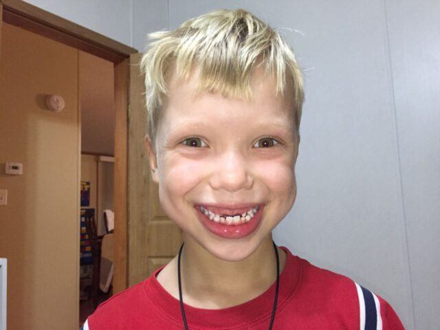 Boy smiling with his two front teeth missing